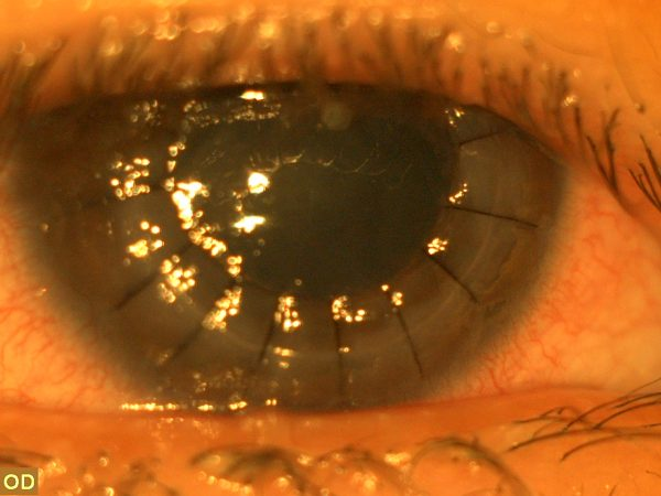 Penetrating keratoplasty sutures
