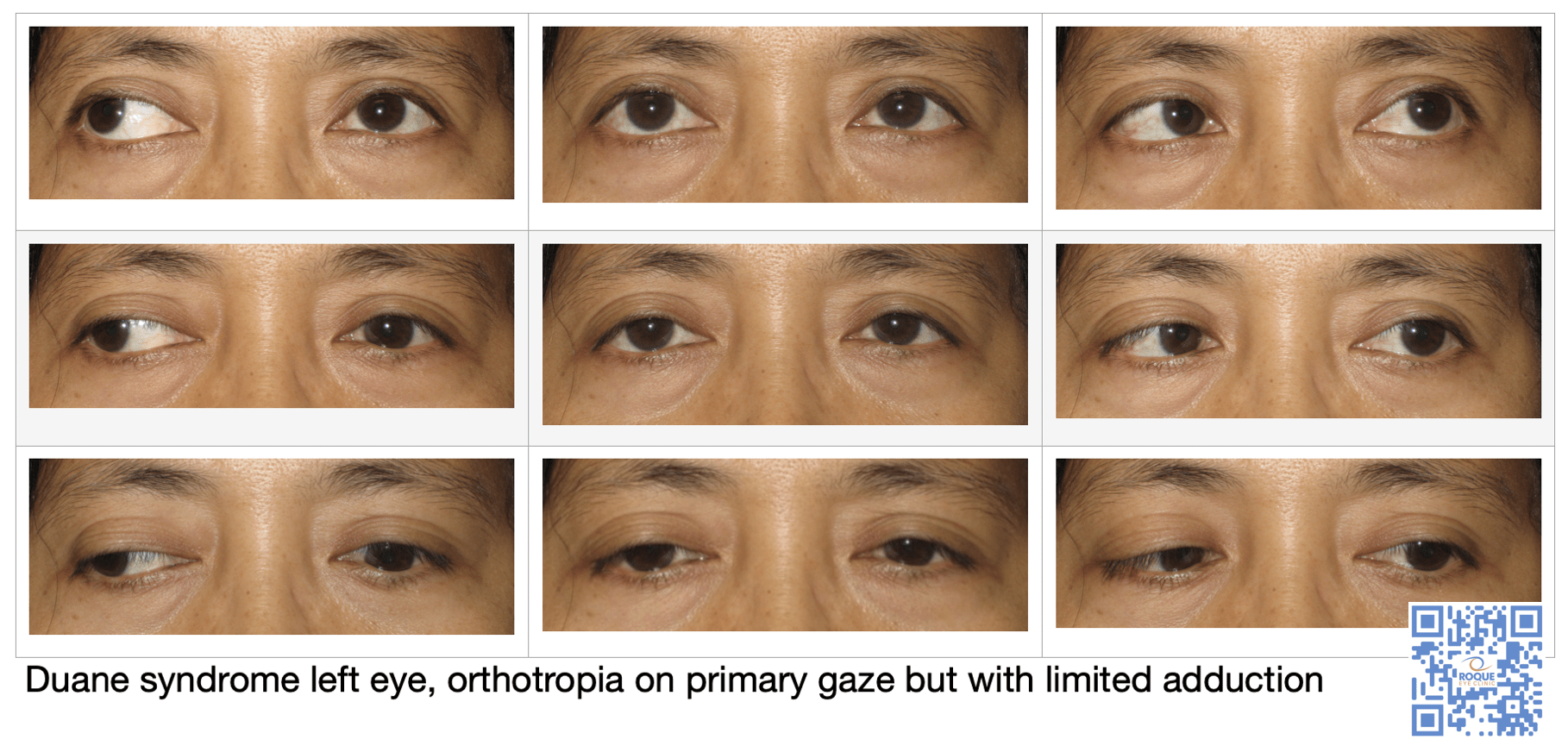 Duane syndrome left eye, orthotropia on primary gaze but with limited adduction.png