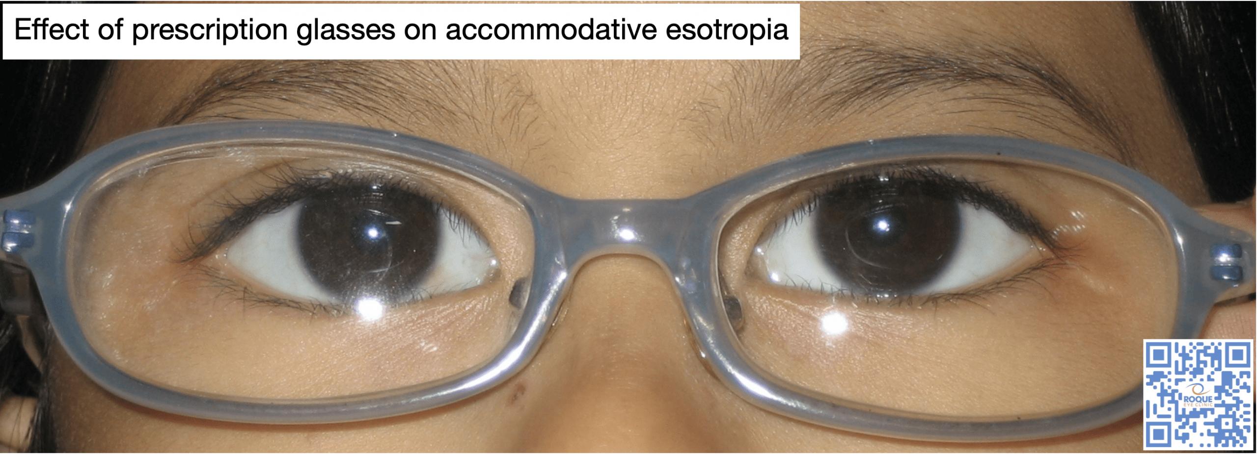 Effect of prescription glasses on accommodative esotropia