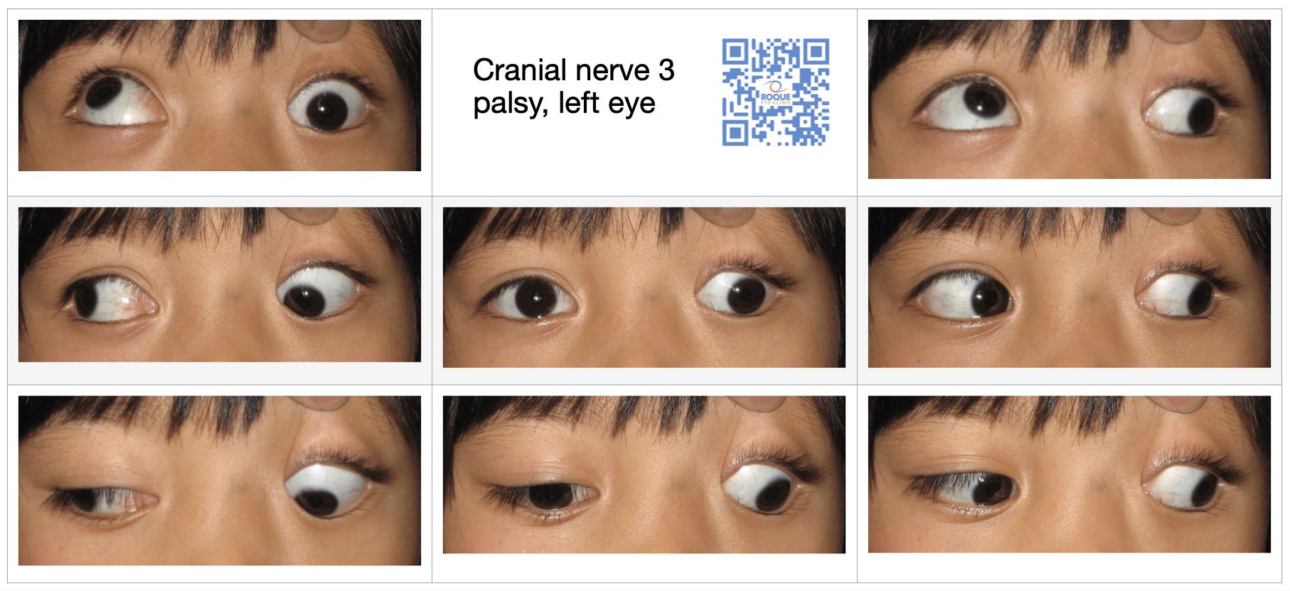 Cranial Nerve Palsy