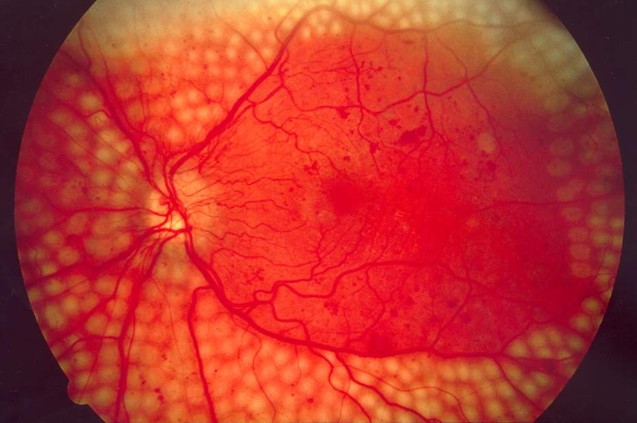 Panretinal Photocoagulation   Diabetic Retinopathy   ROQUE Eye Clinic   Eye.com.ph