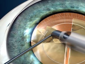 phacoemulsification of cataract