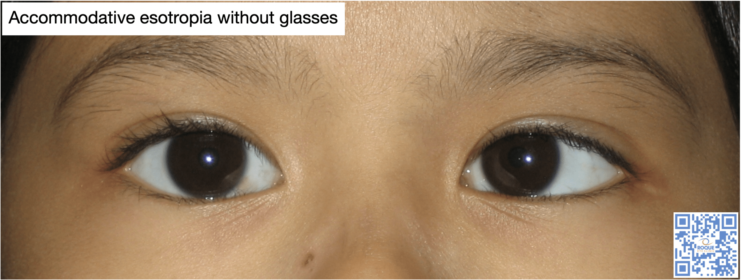 Accommodative esotropia without glasses