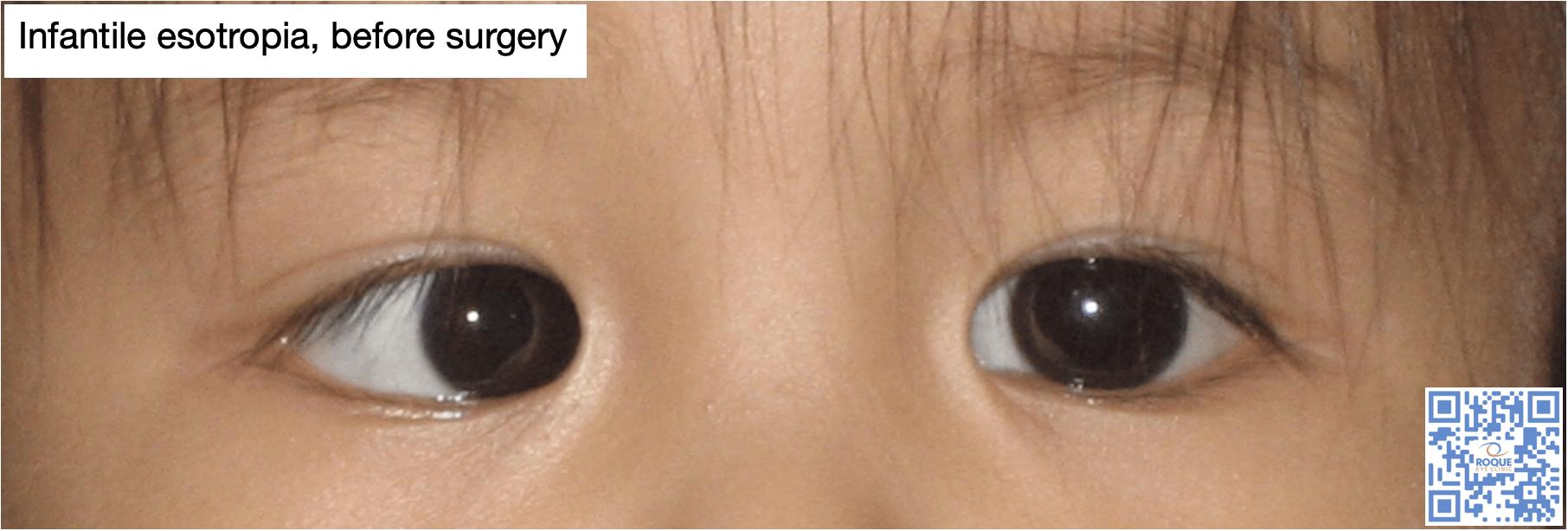 Infantile Esotropia