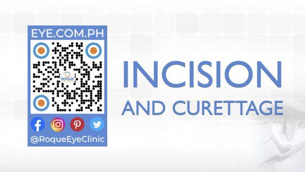 REC QR 2021 16x9 Incision and Curettage