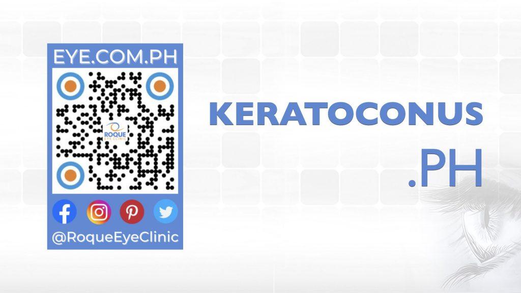 REC QR 2021 16x9 Keratoconus ph