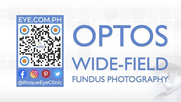 REC QR 2021 16x9 Optos Wide-Field Fundus Photography