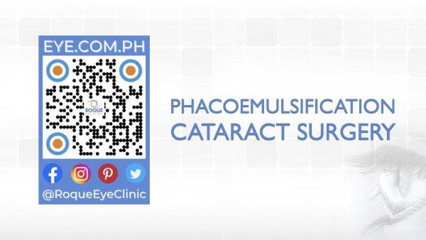 REC QR 2021 16x9 Phacoemulsification Cataract Surgery