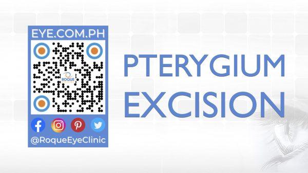 REC QR 2021 16x9 Pterygium Excision
