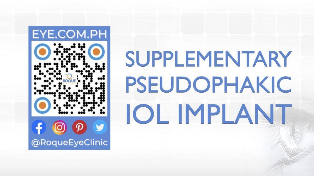 REC QR 2021 16x9 Supplementary Pseudophakic IOL Implant