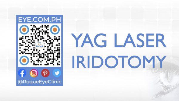 REC QR 2021 16x9 YAG Laser Iridotomy