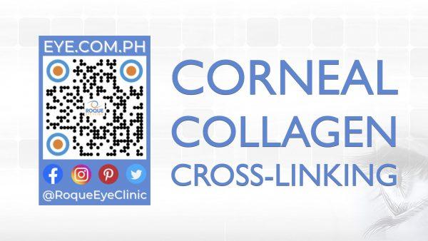 REC QR 2021 16x9 Corneal Collagen Cross-Linking