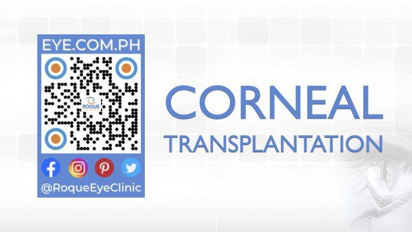 REC QR 2021 16x9 Corneal Transplantation